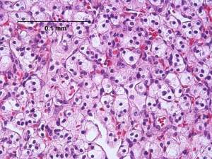 High magnification micrograph of a clear cell renal cell carcinoma. H&E stain.