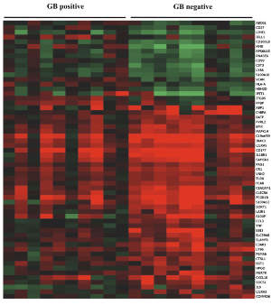 Differential expression of inflammation-associated genes in diabetic patients with acute melioidosis with or without glyburide (Gb). Genes that are up-regulated are shown in red, down-regulated in green; genes in black are not differentially expressed.