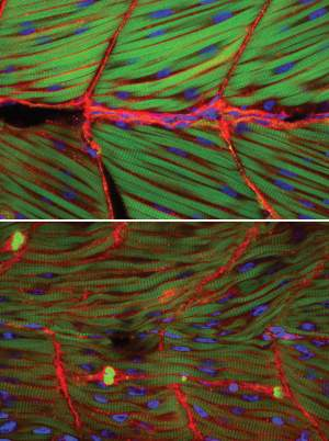 Normal zebrafish muscle [top] compared with muscle where ISPD gene expression has been blocked [bottom]. In the absence of normally functioning ISPD, the muscle fibres are degenerated and disordered.
