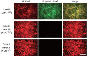 Immunofluorescence showing the absence of polymeric A1AT protein in hepatocyte-like cells generated from correctediPSCs. All forms of A1AT (left panels) and misfolded polymeric A1AT (middlepanels) are shown.
