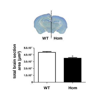 A significantly reduced brain section area in mice who have the UBE3B gene deleted compared to wild types
