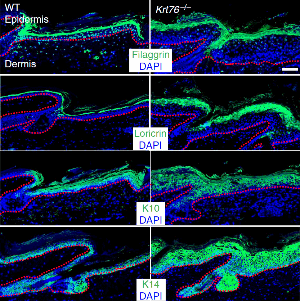 Altered gene activity in mouse skin. In mice with mutant Krt76 gene, activity of differentiation markers Loricrin, Filaggrin and Krt10 is increased. DAPI stains cell nuclei.