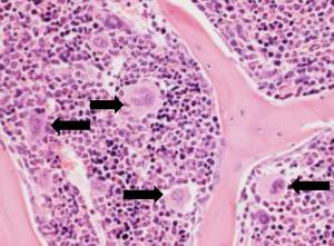 Section of bone marrow showing the megakaryocytes (black arrows), the precursor cells that produce the blood platelets