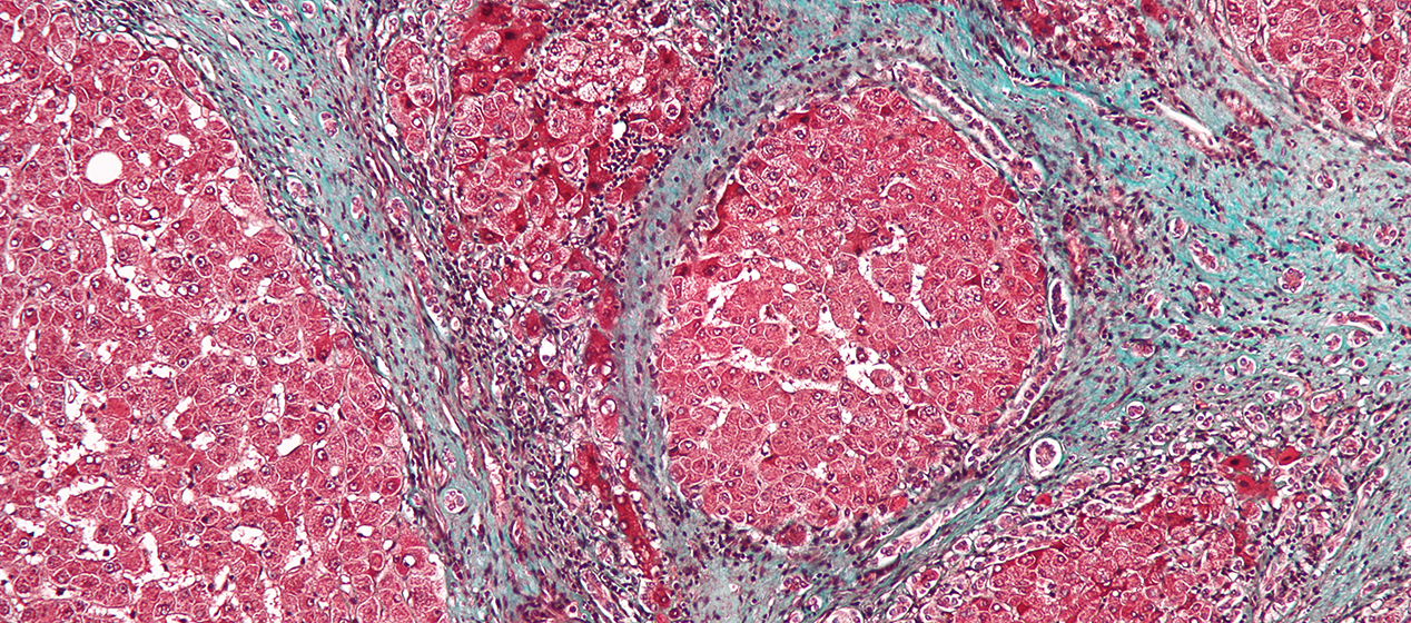 Microscope image of liver tissue affected by cirrhosis