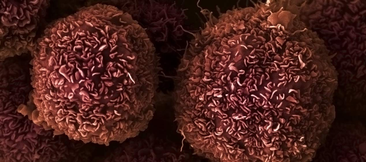 Pancreatic cancer cells: one of 43 types of cancer studied by the Wellcome Sanger Institute for gene fusions