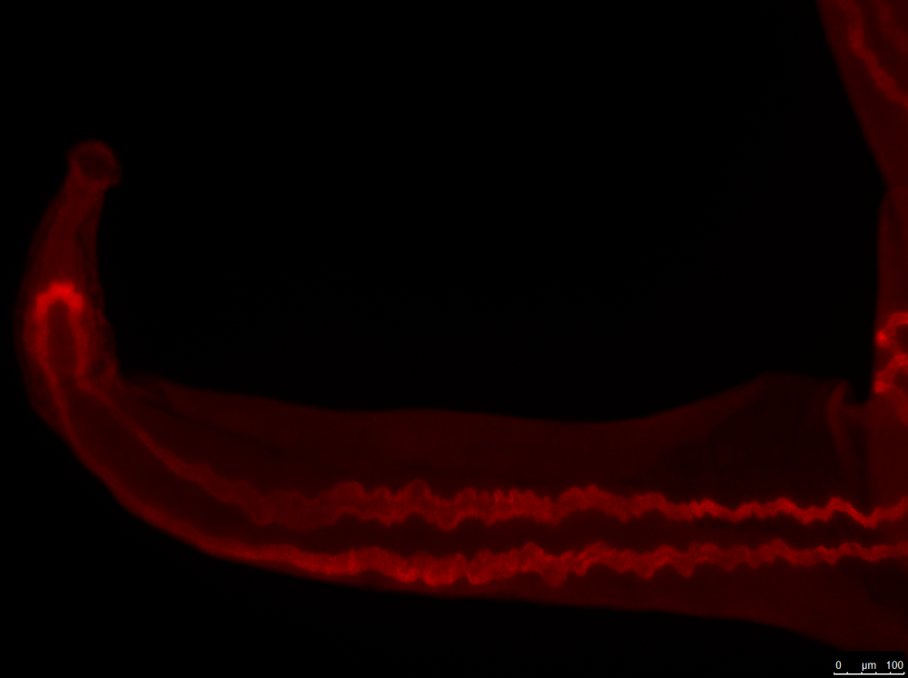 Fluorescent Whole mount <em>In Situ</em> Hybridisation (WISH) of an adult male schistosome (<em>S. mansoni</em>) with a probe against CathepsinB, a gene expressed in the worm's gut.