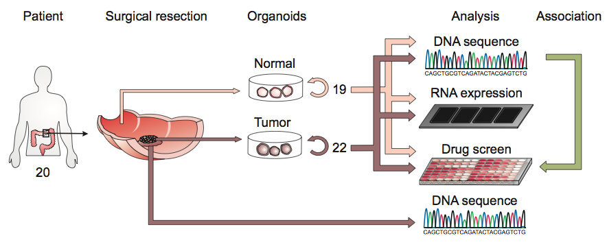A schematic of the derivation of cancer organoids from colon patients.